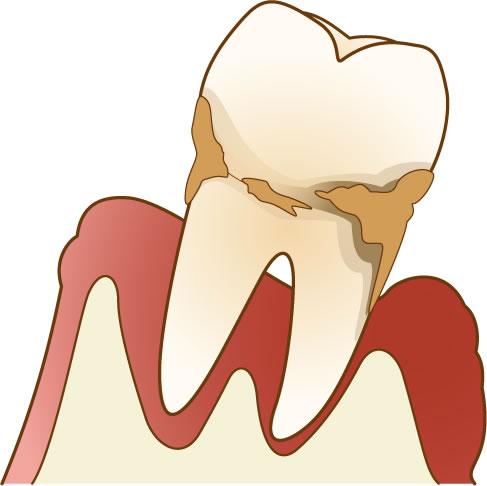自分の歯を大切に